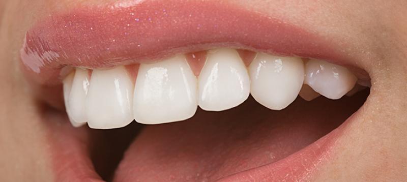 در مورد جراحی زیبایی دندان در اراک بیشتر بدانید