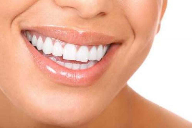 در مورد جراحی زیبایی دندان در بجنورد بیشتر بدانید