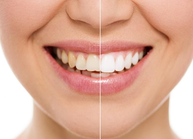در مورد جراحی زیبایی دندان در بوشهر بیشتر بدانید