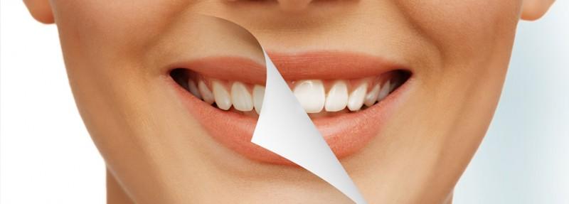 در مورد جراحی زیبایی دندان در بیرجند بیشتر بدانید