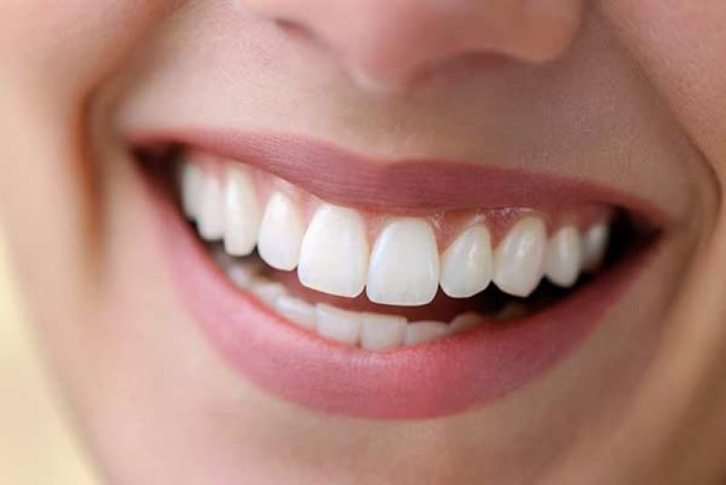 در مورد جراحی زیبایی دندان در زاهدان بیشتر بدانید