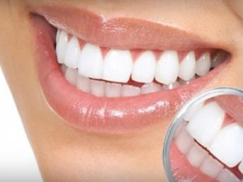 در مورد جراحی زیبایی دندان در ساری بیشتر بدانید