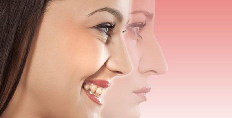 همه چیز در مورد جراحی زیبایی بینی در گرگان