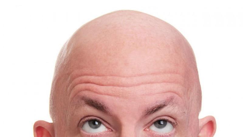 هر آنچه باید در مورد کاشت مو در قم بدانید