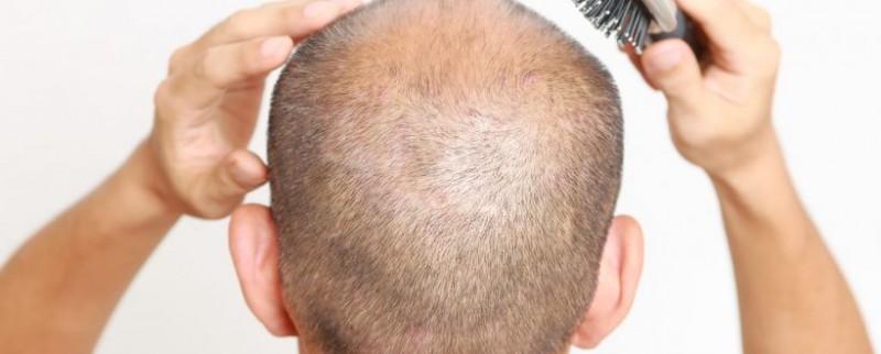 هر آنچه باید در مورد کاشت مو در همدان بدانید