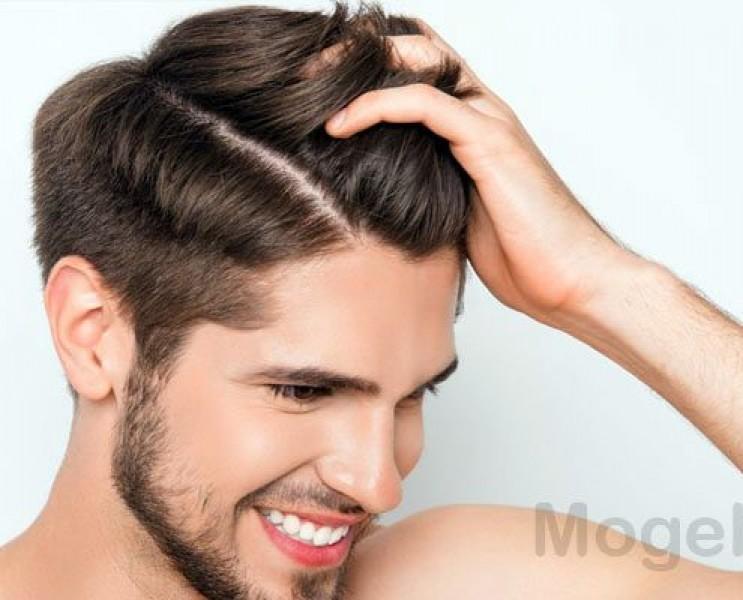هر آنچه باید در مورد کاشت مو در یاسوج بدانید