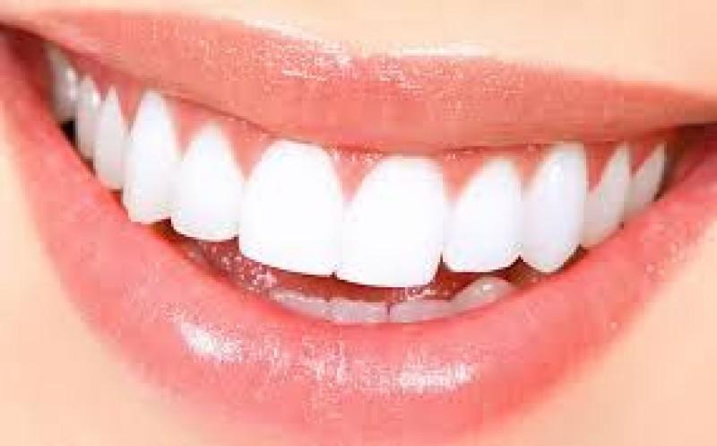 در مورد جراحی زیبایی دندان در قزوین بیشتر بدانید