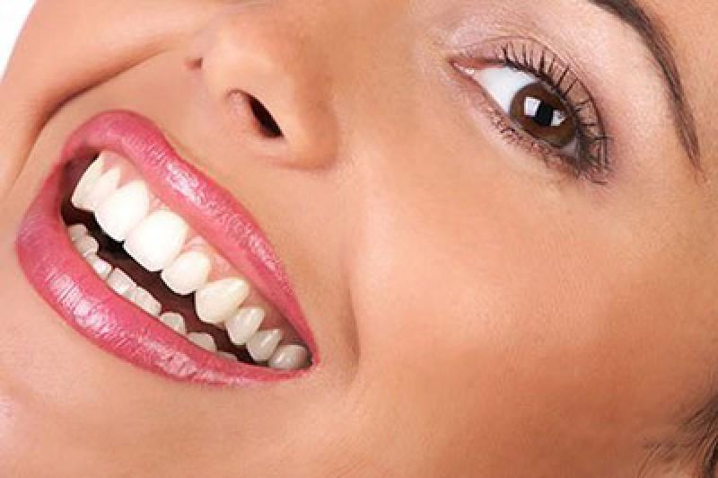 در مورد جراحی زیبایی دندان در کرمانشاه بیشتر بدانید