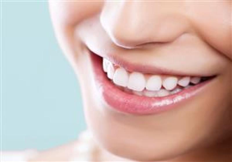 در مورد جراحی زیبایی دندان در یاسوج بیشتر بدانید