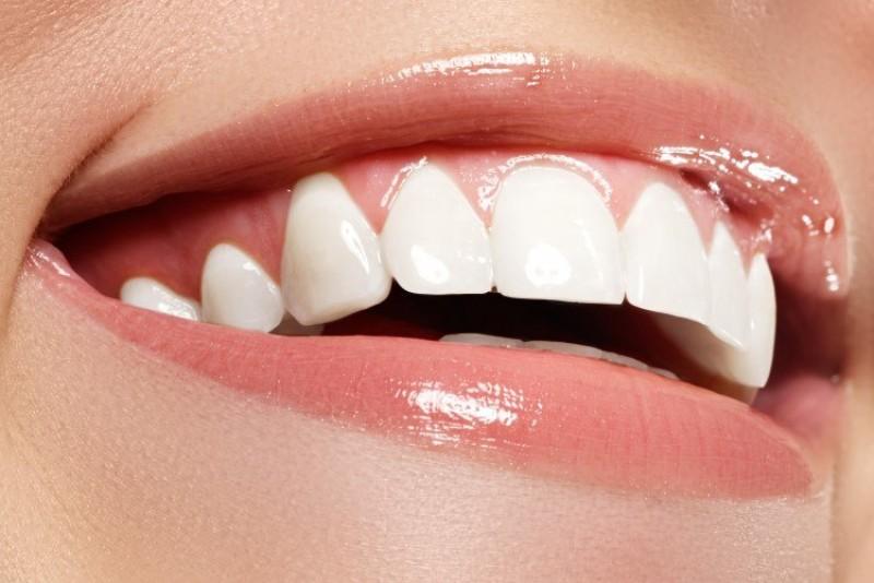 در مورد جراحی زیبایی دندان در یزد بیشتر بدانید