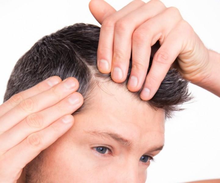 هر آنچه باید در مورد کاشت مو در زنجان بدانید
